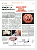 download image - Zahnärztliche Praxis 06/2015: Dr. Dr. O. Klewer –  Die digitale Totalprothese