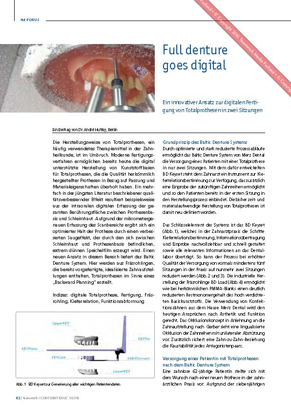 download image - Teamwork 1/2016: Dr. André Hutsky – Full denture goes digital