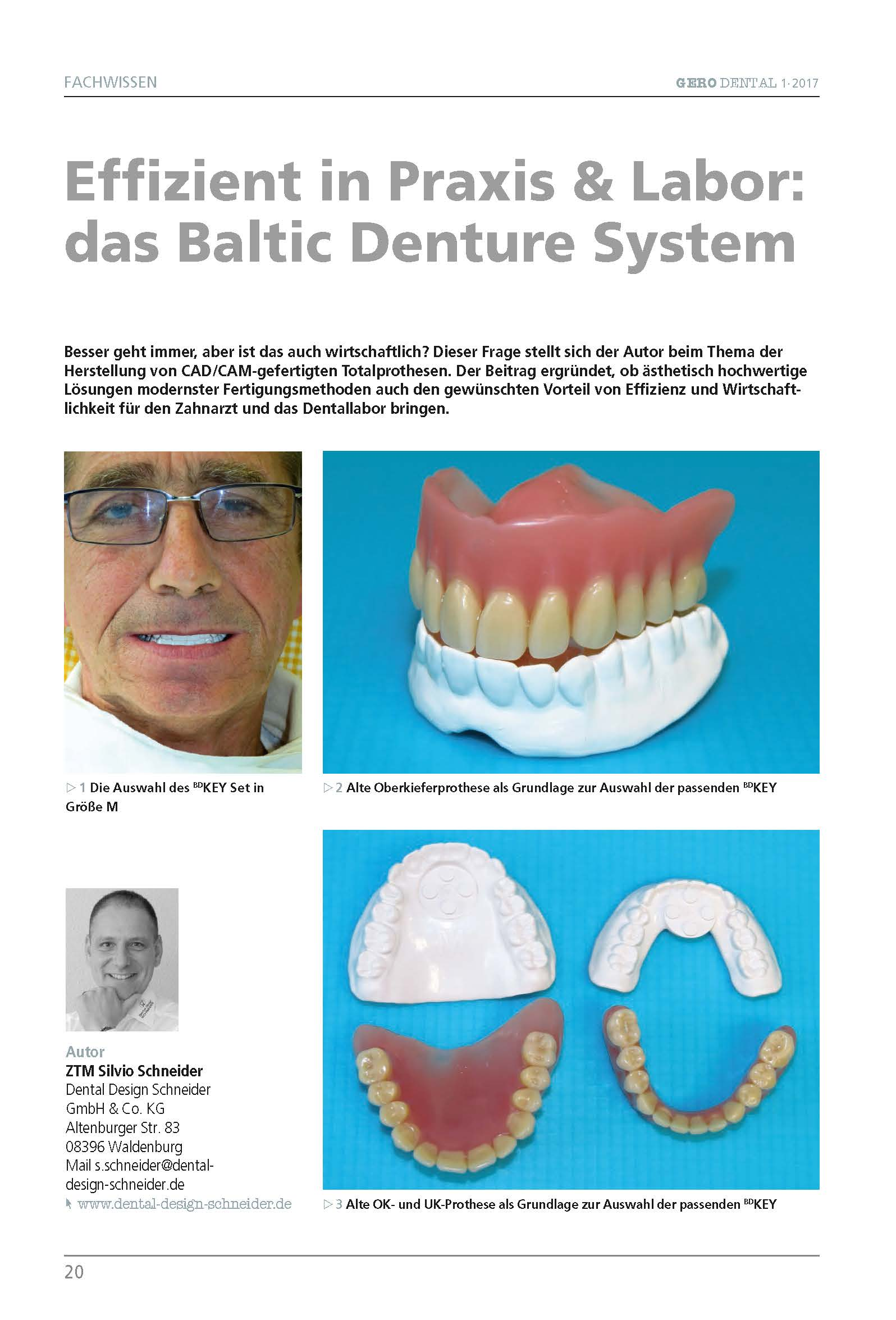 "download image - GERO DENTAL März 2017: ZTM Silvio Schneider – ""Effizient in Praxis & Labor: das Baltic Denture System"""